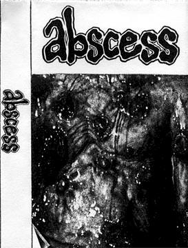 Abscess - Abscess