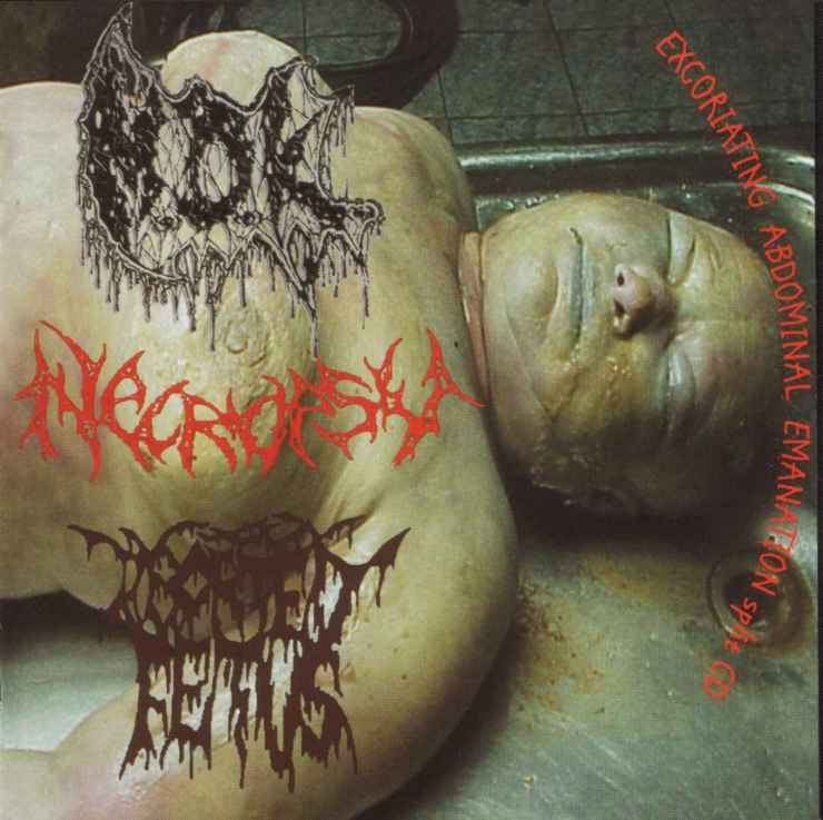 Necropsy / M.D.K. / Aborted Fetus - Excoriating Abdominal Emanation
