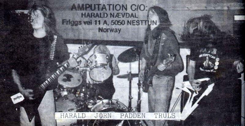Amputation - Photo