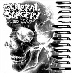 General Surgery - Demo 2005