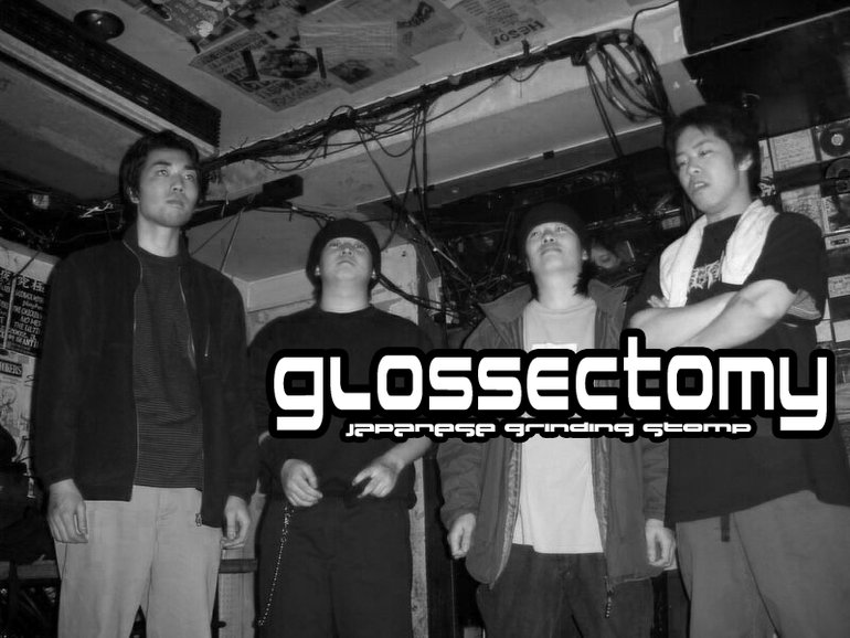 Glossectomy - Photo