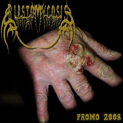 Blastomycosis - Promo