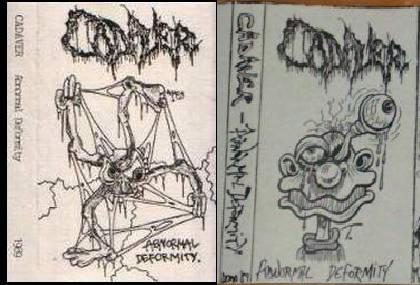 Cadaver - Abnormal Deformity