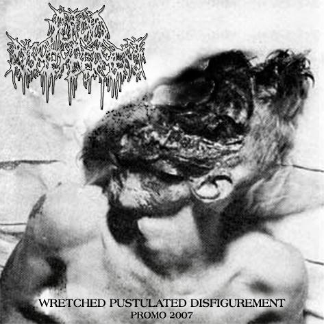 Putrid Dismemberment - Wretched Pustulated Disfigurement (Promo)