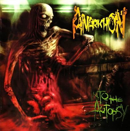 Anarkhon - Into the Autopsy