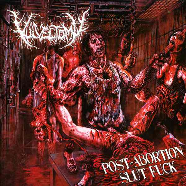 Vulvectomy - Post-Abortion Slut Fuck