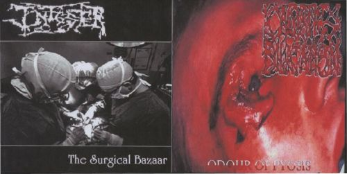 Aortic Dilatation - Odour of Pyosis / The Surgical Bazaar