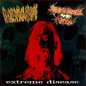 Erythrioblastosis Fetalis - Extreme Disease