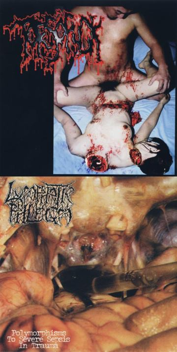Lymphatic Phlegm / Torsofuck - Disgusting Gore and Pathology / Polymorphisms to Severe Sepsis in Trauma