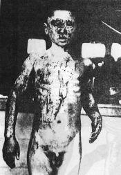 Toxic Treatment - Dismembered Head Skull
