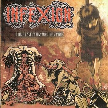Infexion - The Reality Beyond the Pain