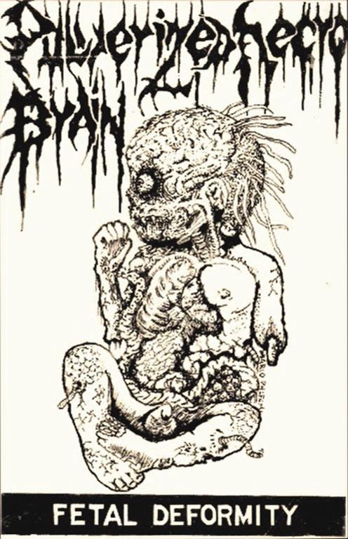 Pulverized Necro Brain - Fetal Deformity