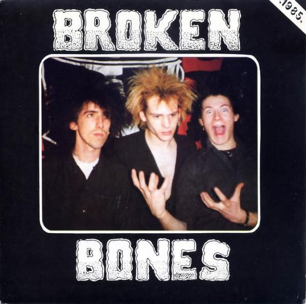 Broken Bones - Seeing Through My Eyes
