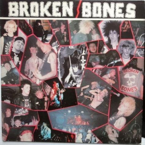 Broken Bones - Never Say Die