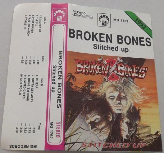 Broken Bones - Stitched Up