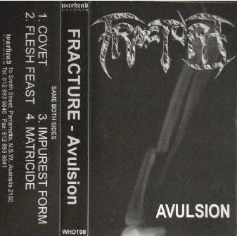 Fracture - Avulsion