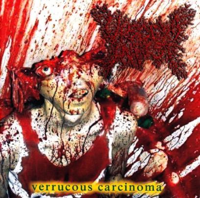 Viscera Infest - Verrucous Carcinoma