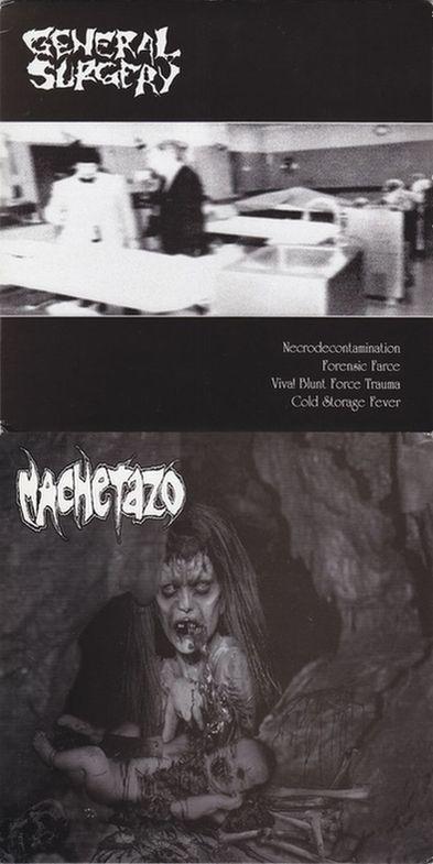 Machetazo / General Surgery - General Surgery / Machetazo
