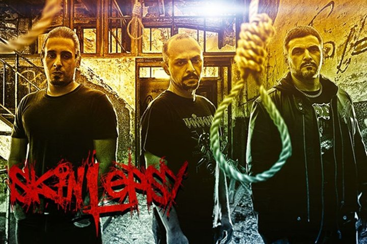 Skinlepsy - Photo