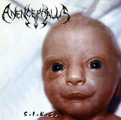 Anencephalus - S.I.K.C.