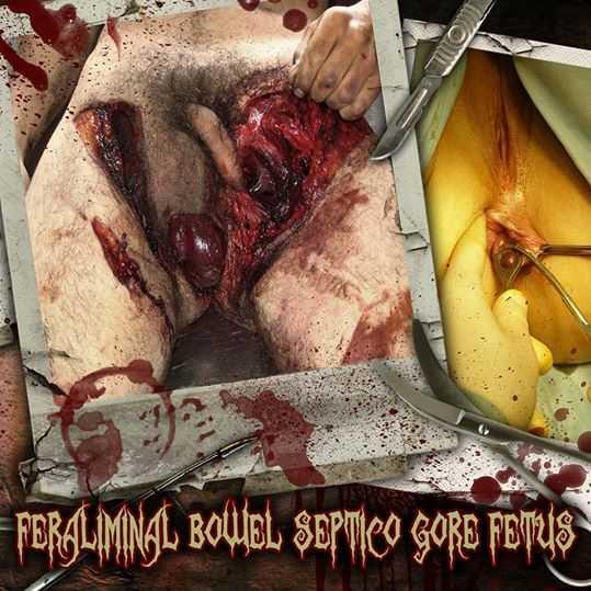 Bowel Stew / Gore / Septicopyemia / Dead Fetus Collection / Feraliminal Lycanthropizer - Feraliminal Bowel Septic Gore Fetus