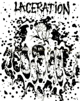 Laceration - Scabs