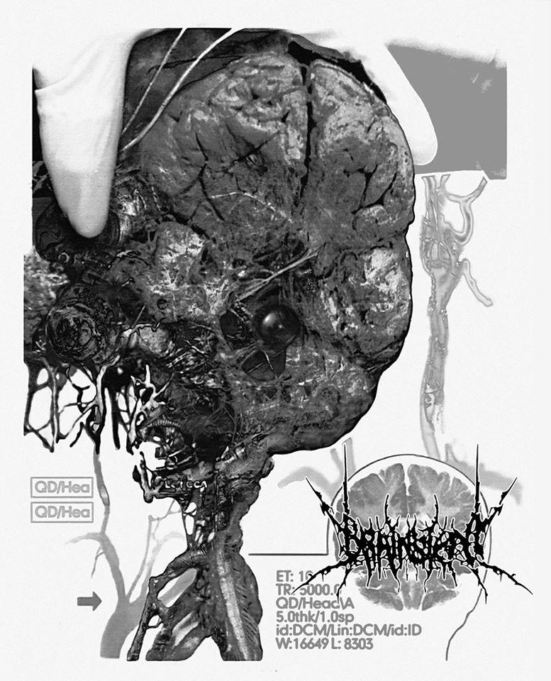 Brainstem - Brainstem