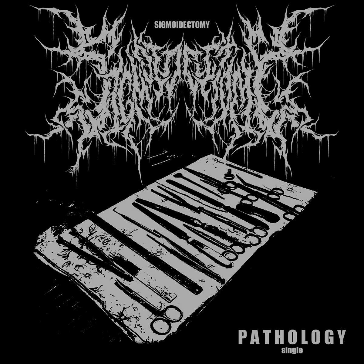 Sigmoidectomy - Pathology