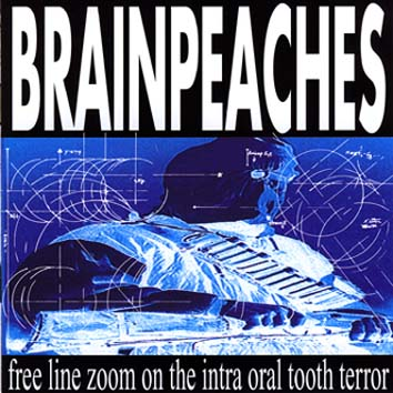 Brainpeaches - Free Line Zoom on the Intra Oral Tooth Terror