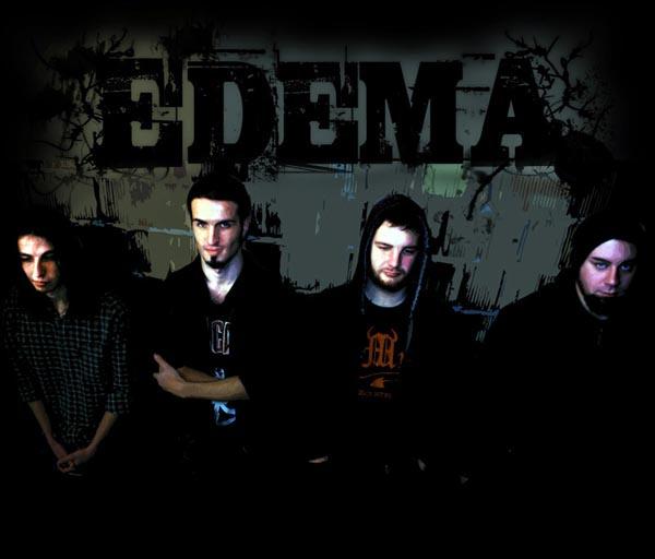 Edema - Photo